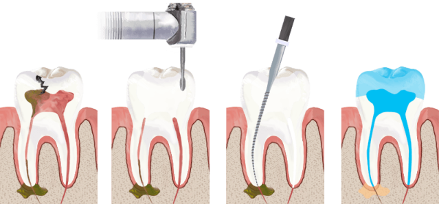 Root Canal - Dr Ismail Health Care Group Dubai